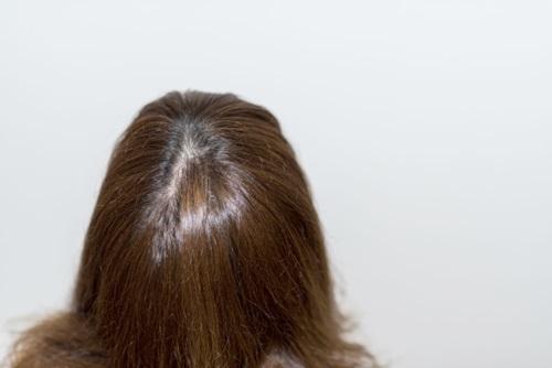 ハゲるのはイヤ!脂漏性脱毛症になる前におすすめのシャンプーとは?